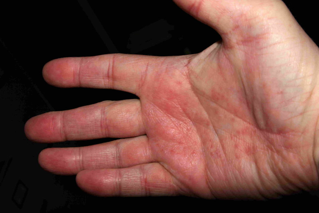 Inflamed Right Hand